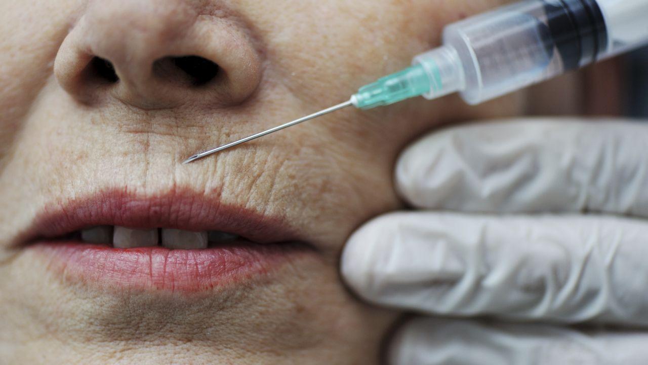Морщины над верхней губой - как быстро и эффективно убрать 67