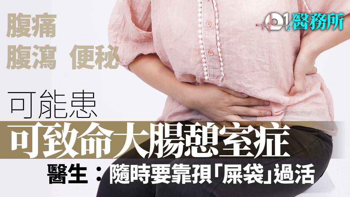 憩室 炎 入院 大腸