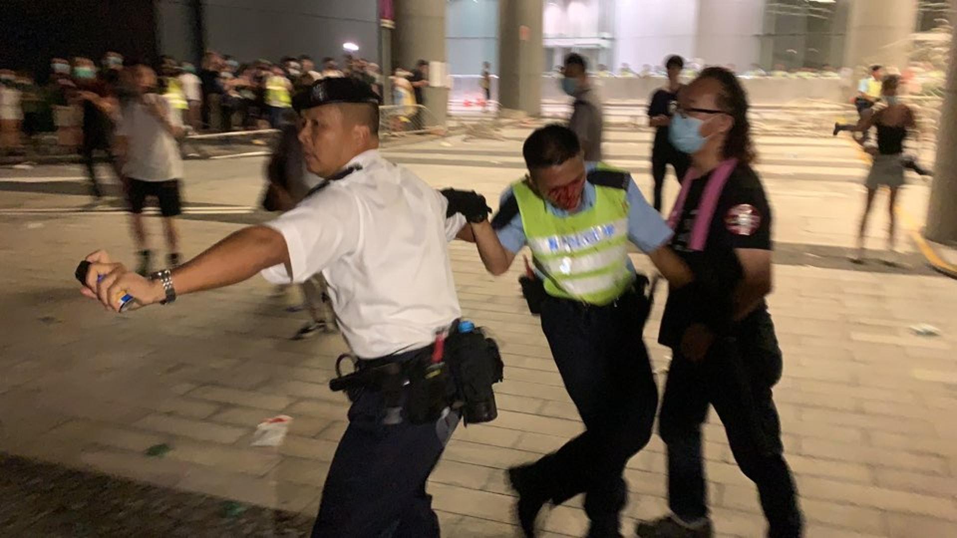 有警員(中)在衝突中受傷。(梁祖饒攝)
