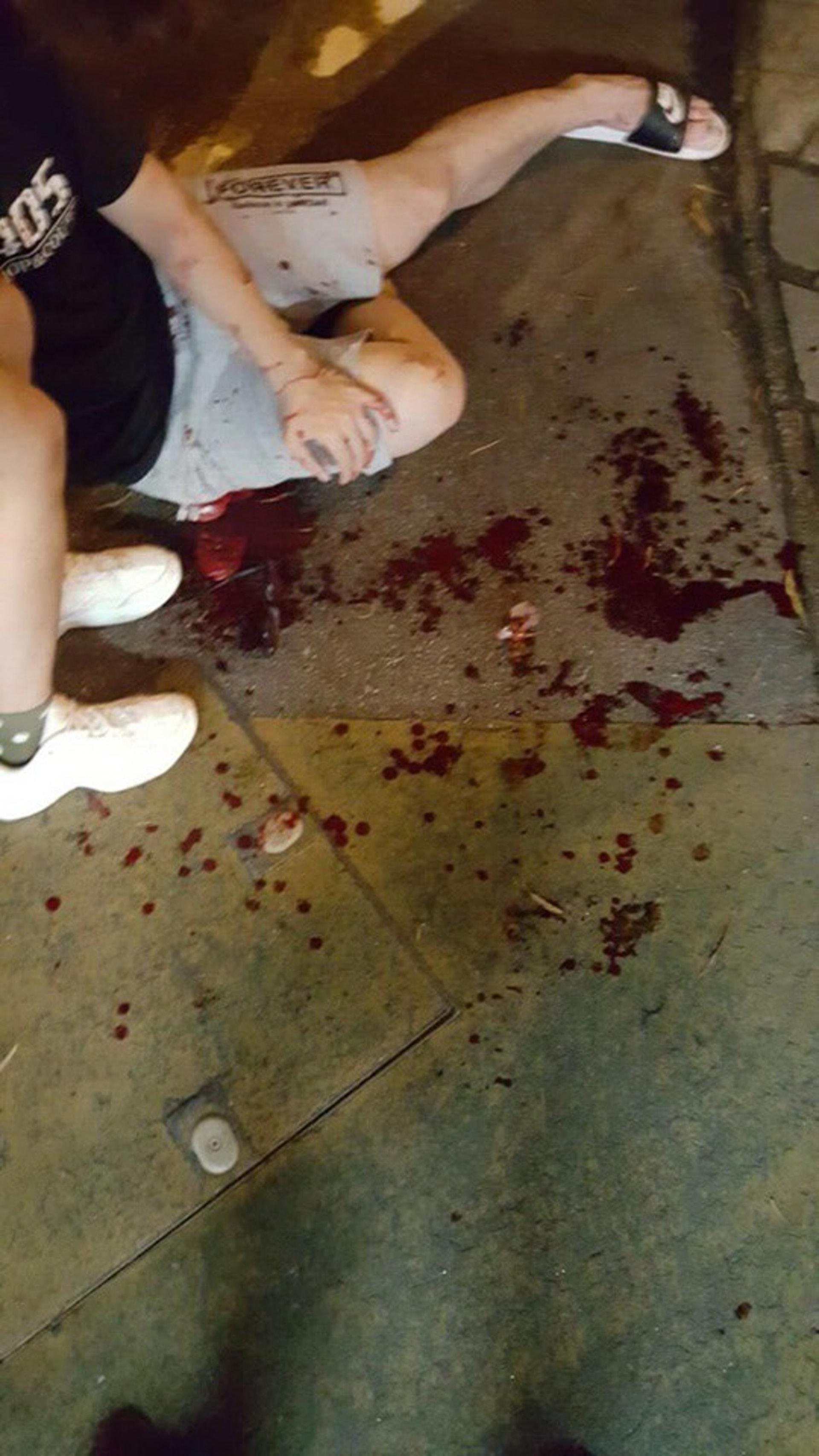女傷者嚴重受傷,滿地鮮血。(網上圖片)