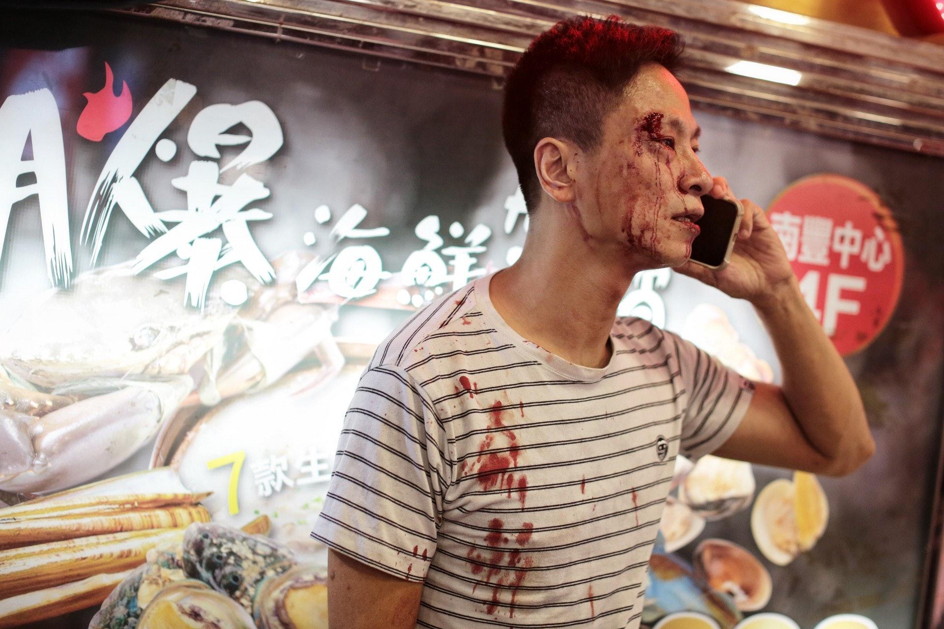 一名男子右眼角流血,血流披面。(李澤彤攝)