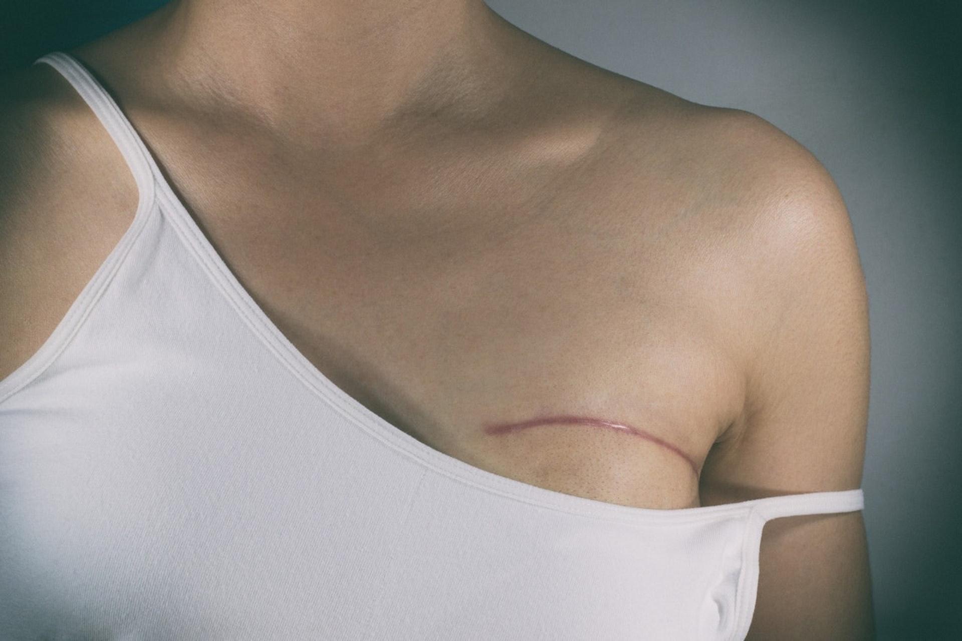 乳房是女性身體的一大特徵,但部分乳癌病人或因病情而需要切除一邊甚至兩邊乳房,影響她們對外形的自信。(Gettyimages/VCG)