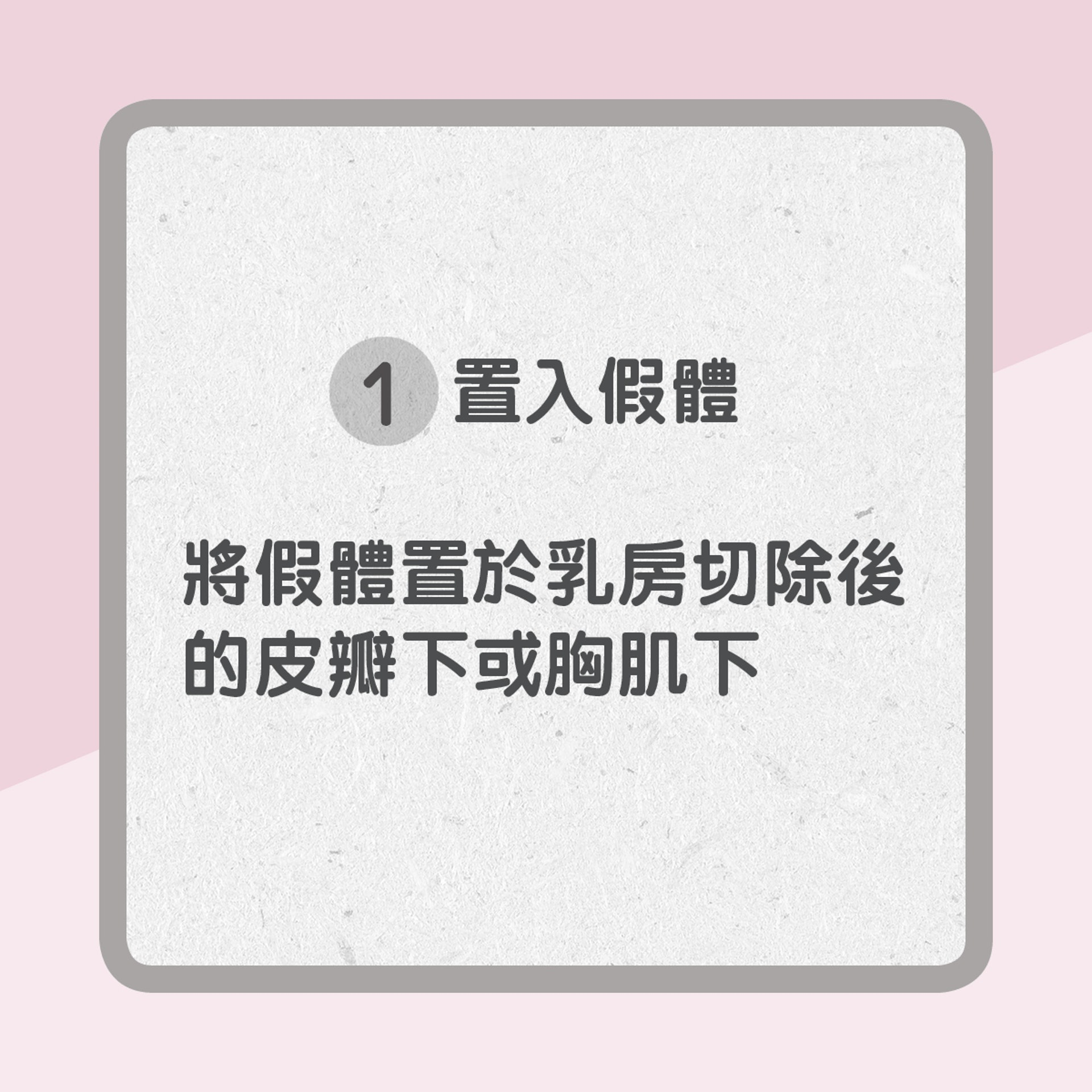 1. 置入假體(01製圖)