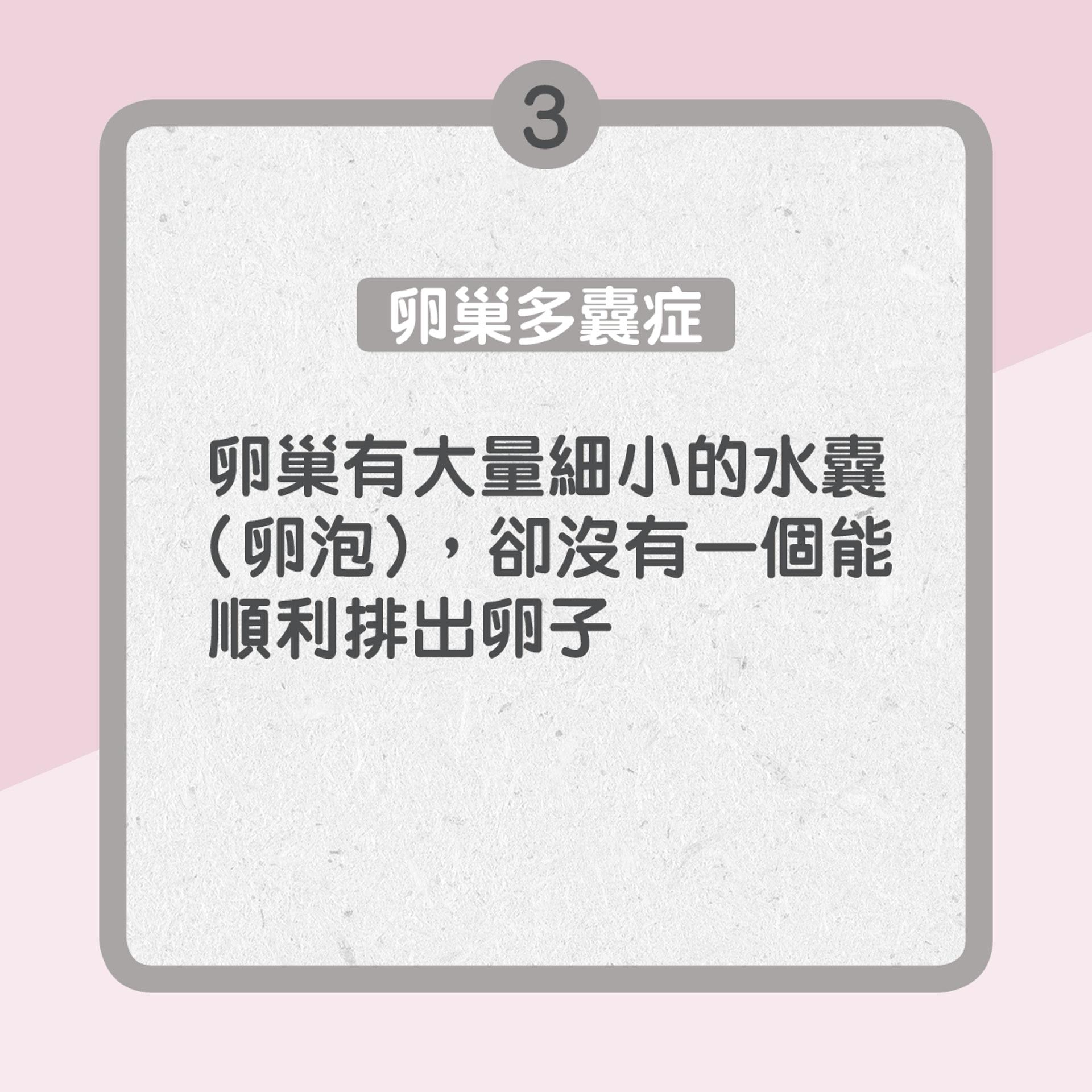 3. 卵巢多囊症:卵巢有大量細小的水囊(卵泡),卻沒有一個能順利排出卵子(01製圖)
