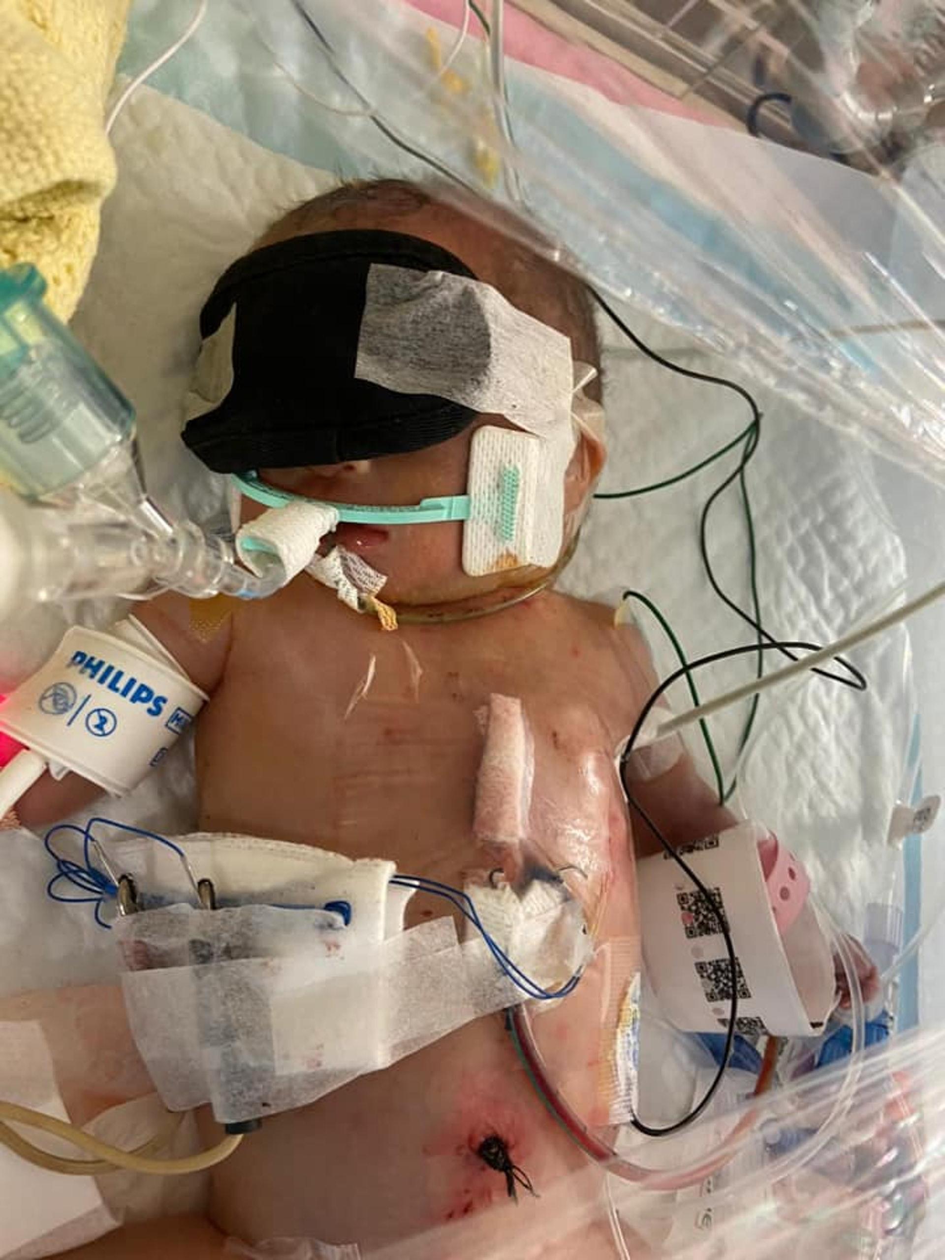 小秋彥出生時僅重1.18公斤。(未得歸家的小秋彥facebook圖片)