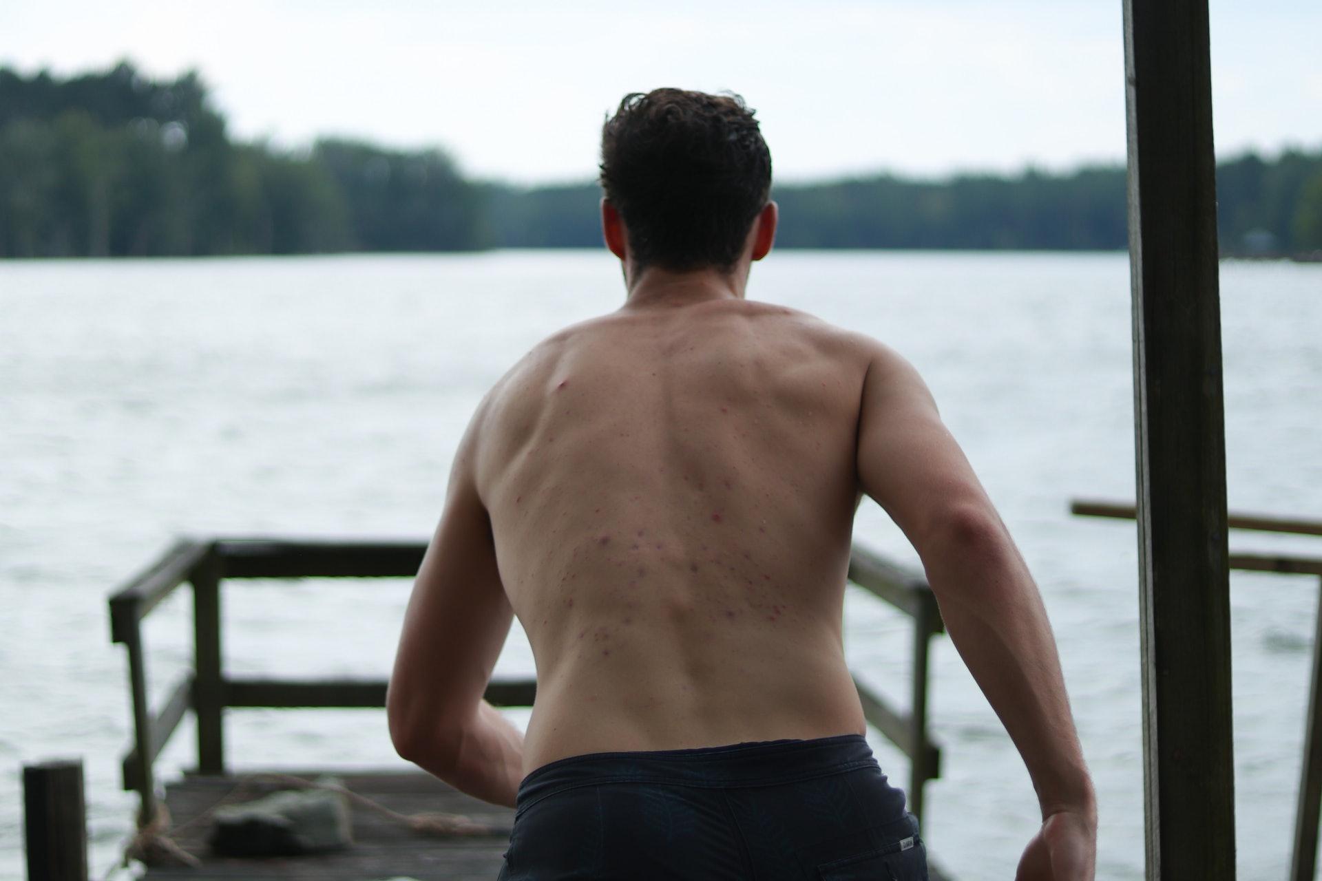 最常見的生蛇情況是從上背位置一路向下彎,或影響至前胸。(Ian Noble/unsplash)
