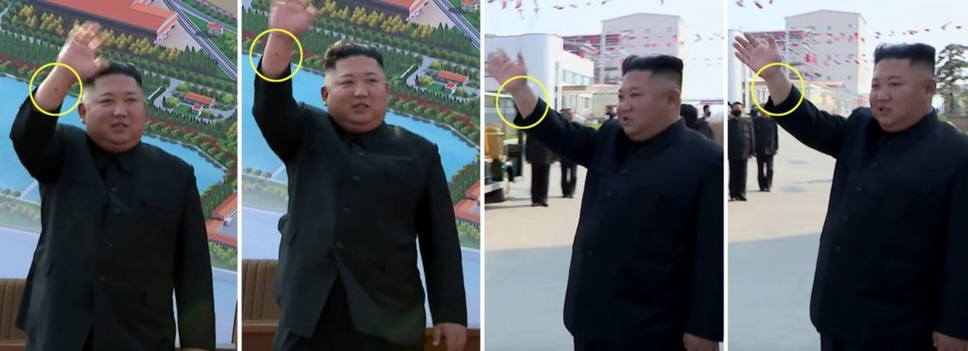 金正恩右手前臂疑有疤痕,被指與心臟血管手術有關。(「NK NEWS」Twitter圖片)
