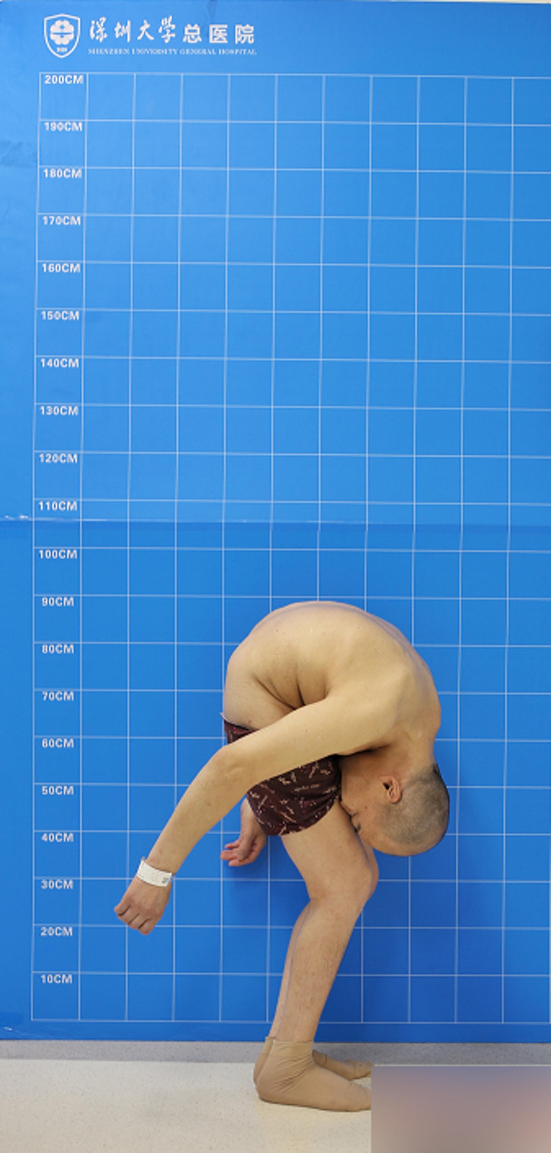 自從患病以來,李華的身體更呈現完全摺疊狀態,無法直立行走或平躺睡覺。(網上圖片)