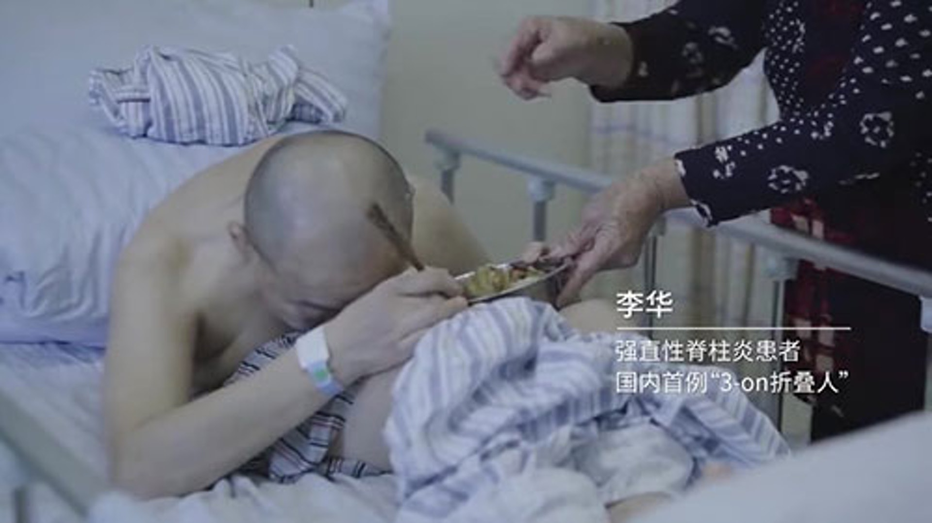 自從患病以來,李華的身體更呈現完全摺疊狀態,無法直立行走或平躺睡覺。((紀錄片截圖)