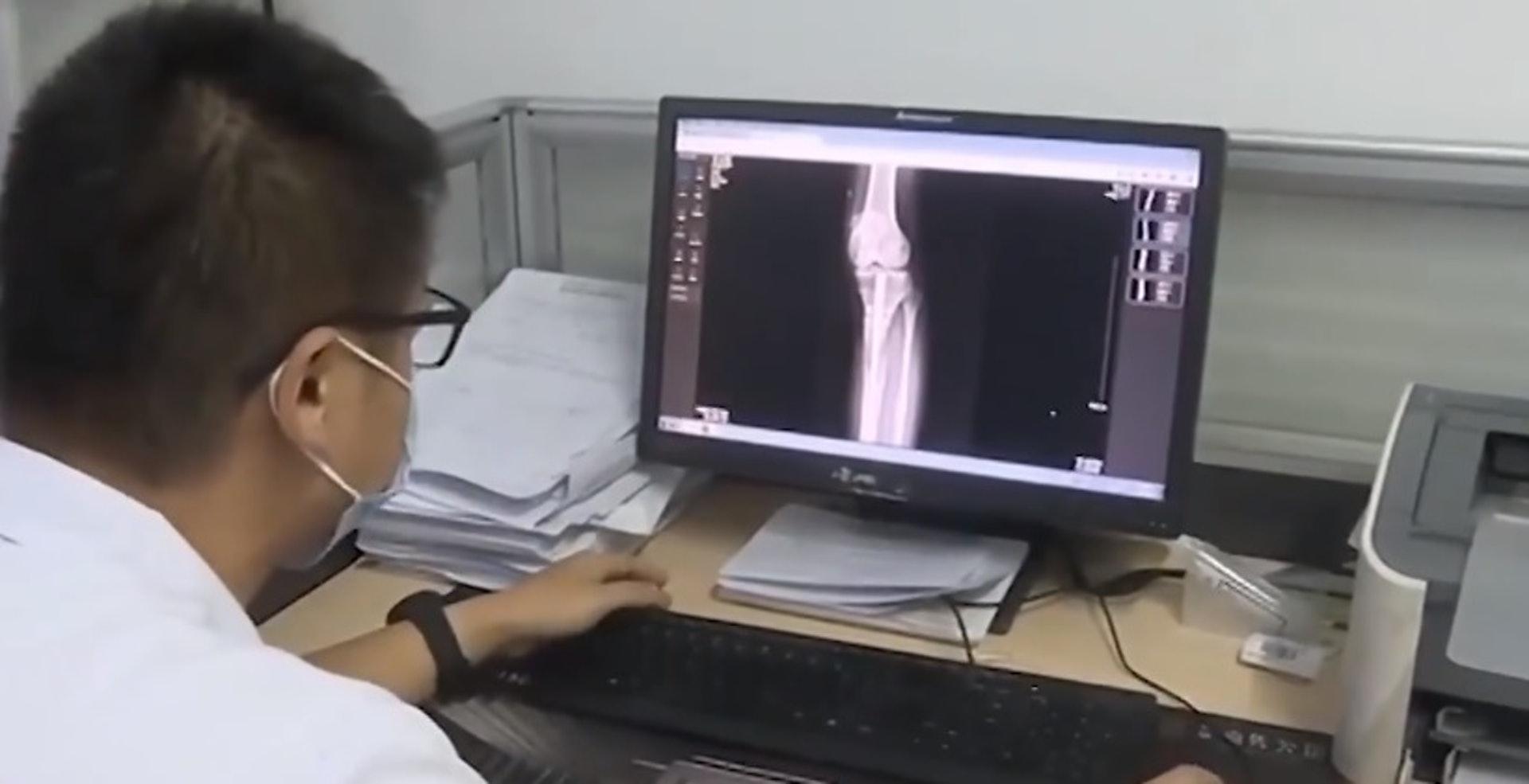 王磊坦言男事主的增高手術「失敗了」,不但身體承受痛苦,經濟方面也出現很大負擔。(微博影片截圖)