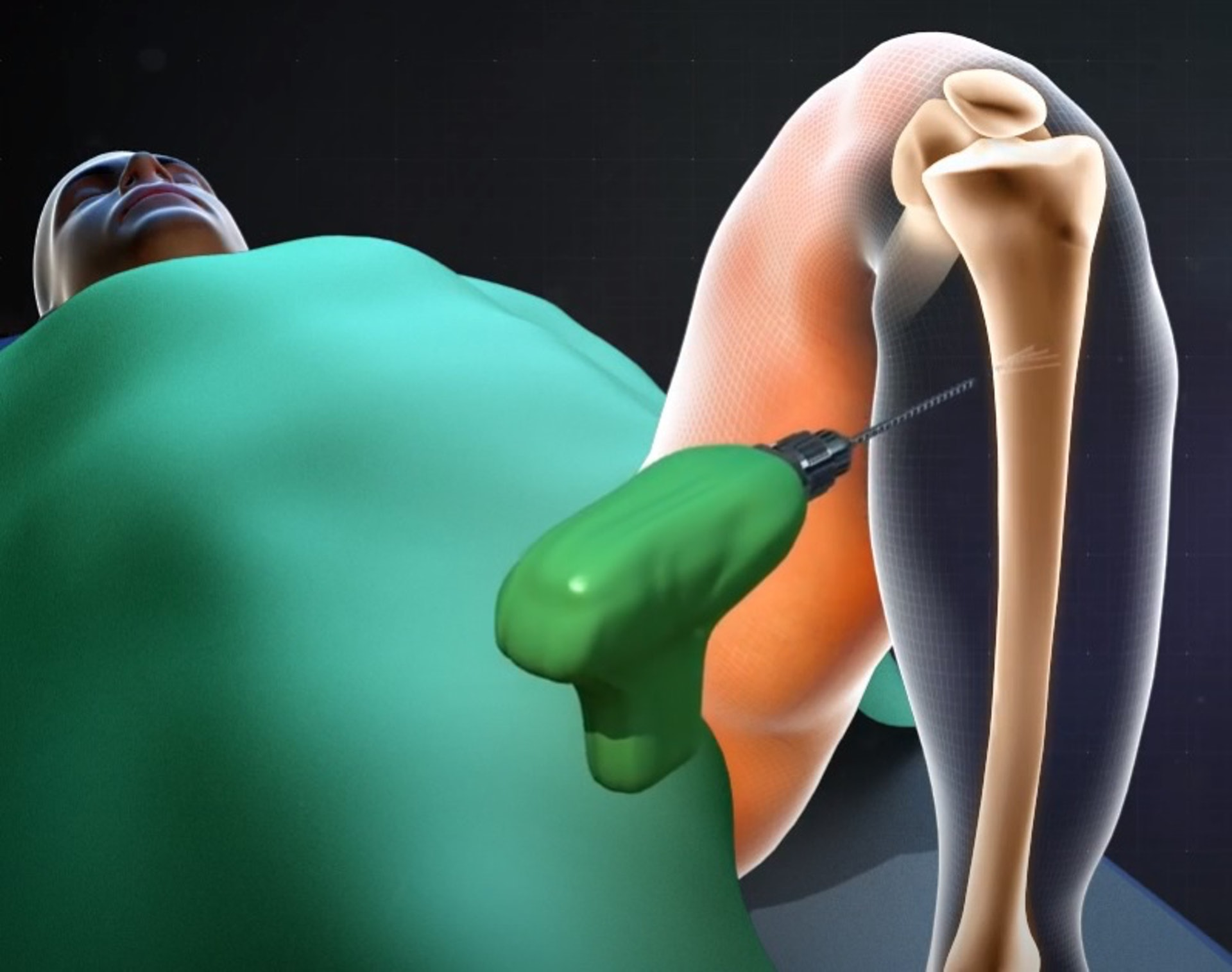 進行斷骨增高手術時,醫生會先在腿骨上鑽孔。(Youtube影片截圖/示意圖)