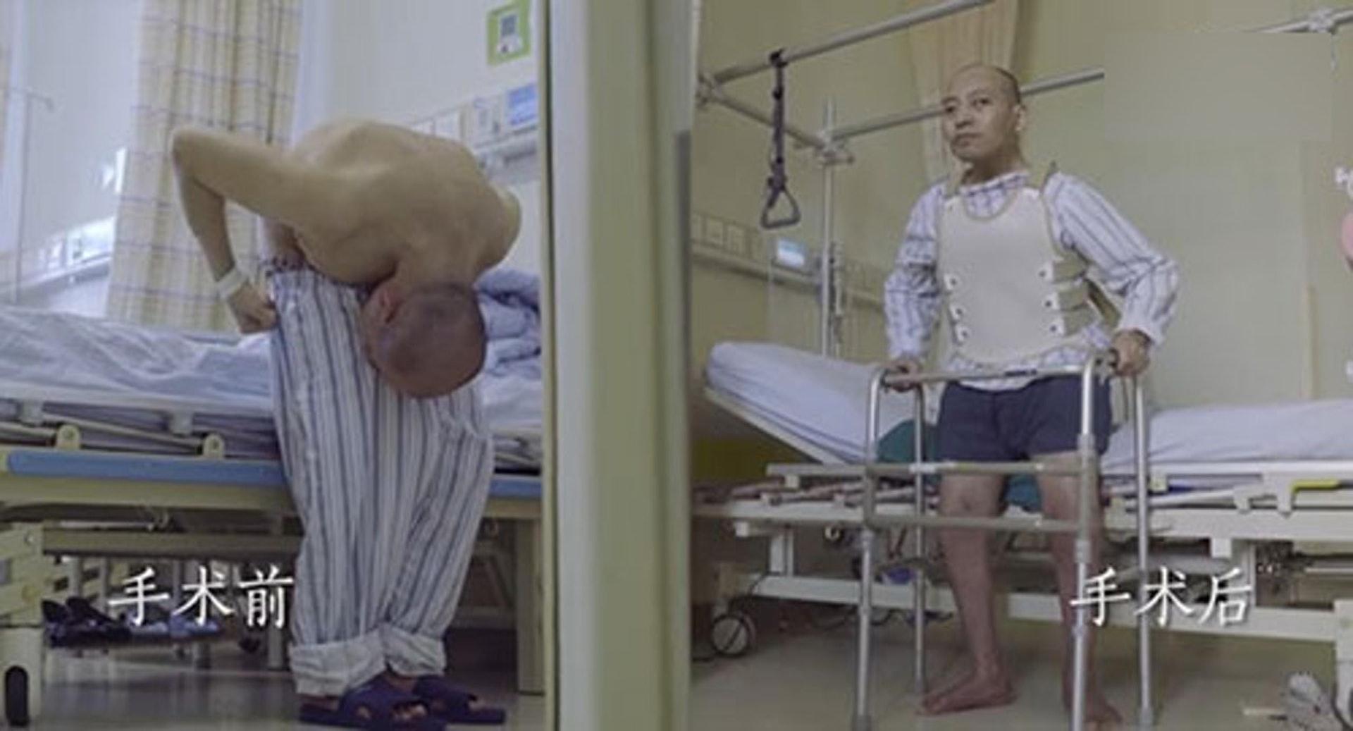 經過4次的手術,李華重新站起來了,更可依靠輔助工具緩緩行走。(紀錄片截圖)