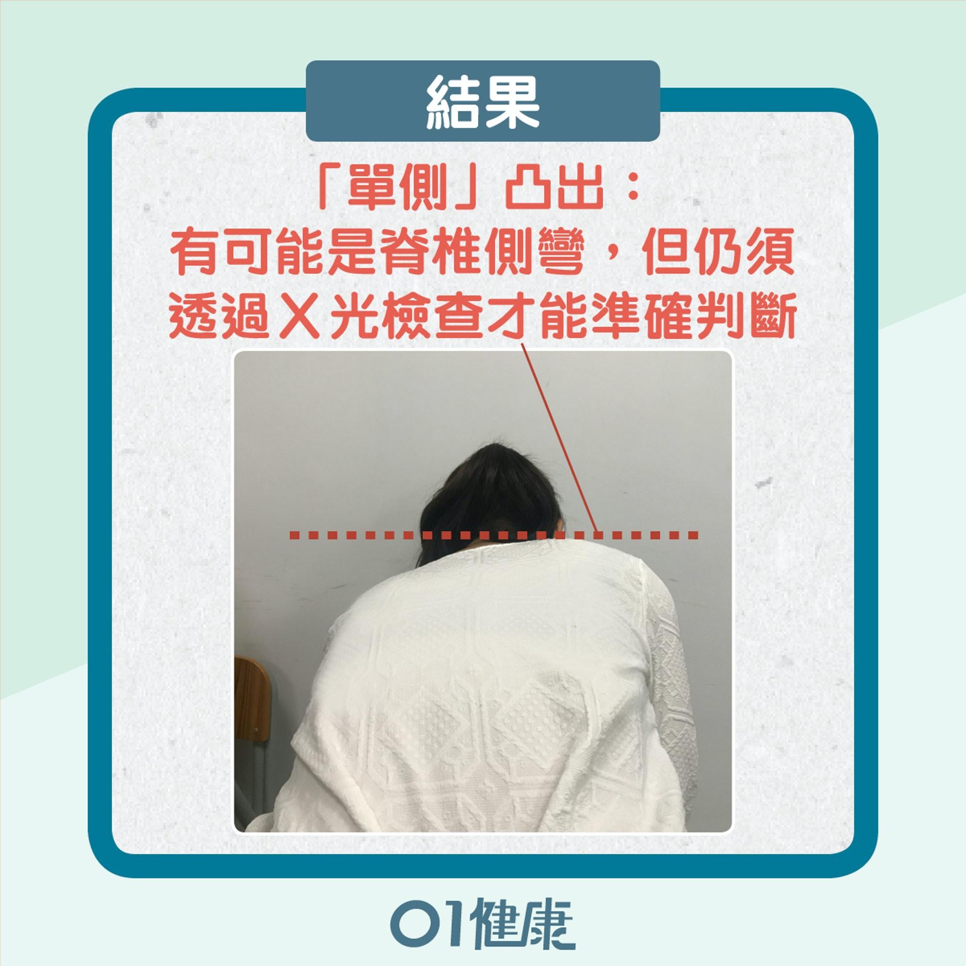 自我檢測脊椎側彎(01製圖)