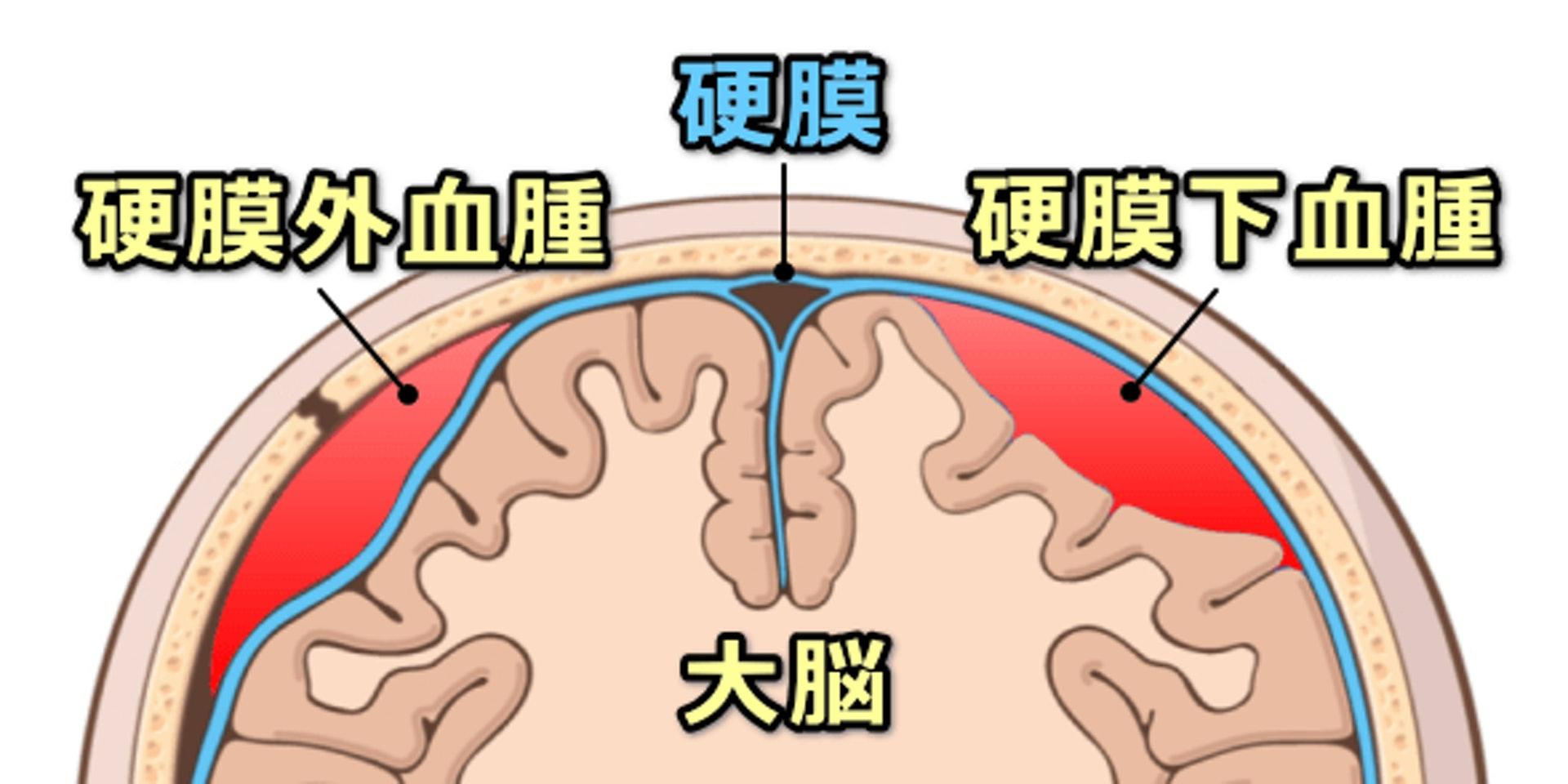 血腫 下 硬 膜