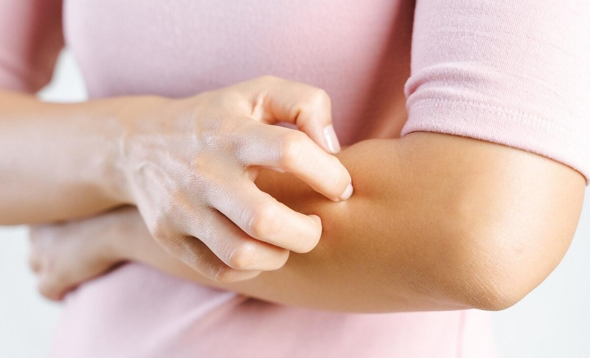 都市生活環境多致敏源,容易引發各式各樣的皮膚過敏問題。(圖片:biz-journal.jp)