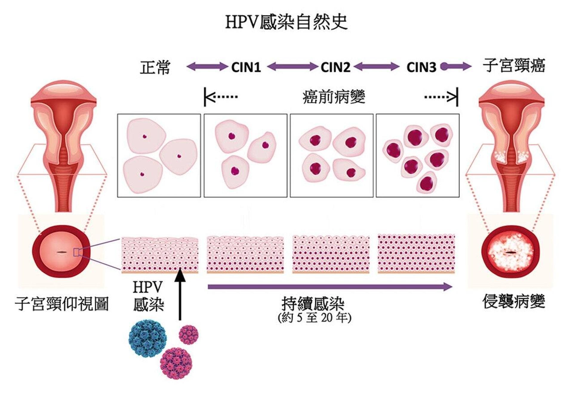 (圖片:HPVSelfSampling)