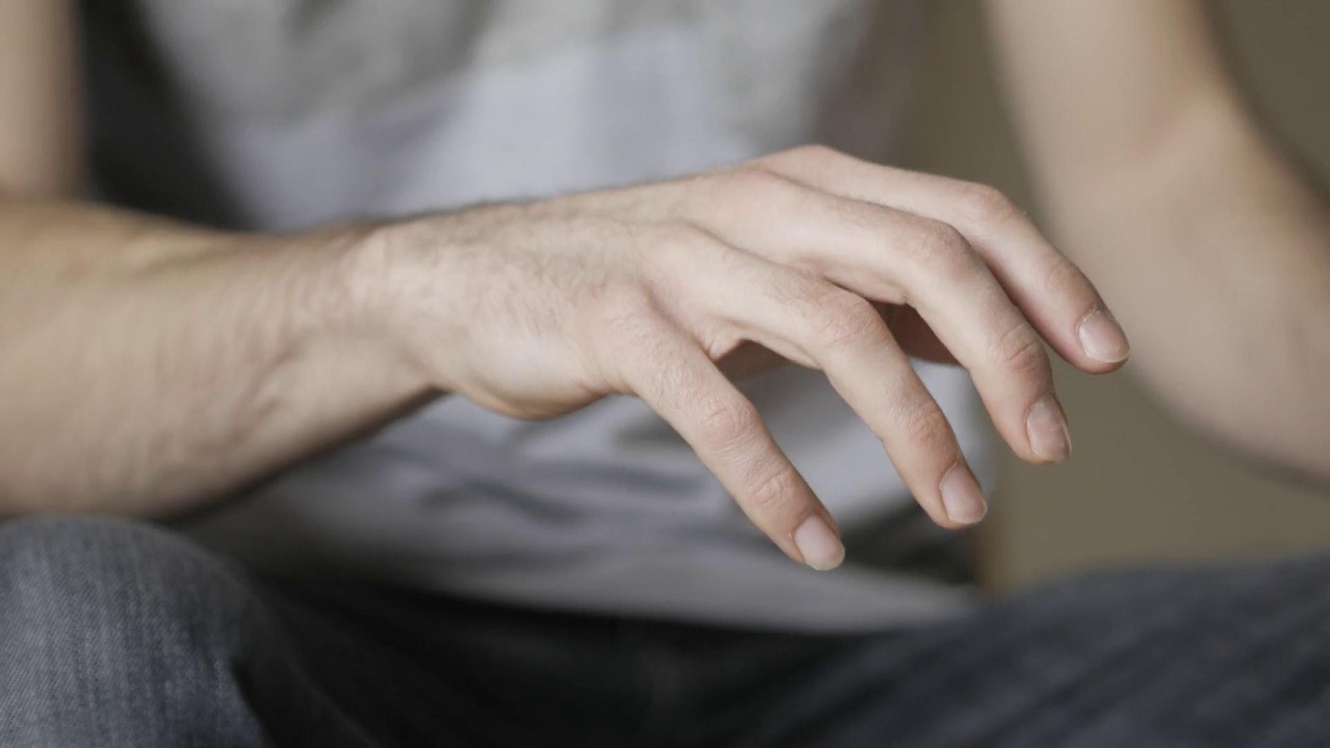 柏金遜症的病徵可分為三個階段,最為人熟知的手震症狀屬早期病徵;晚期可惡化至失去自理能力。(圖片:vk)