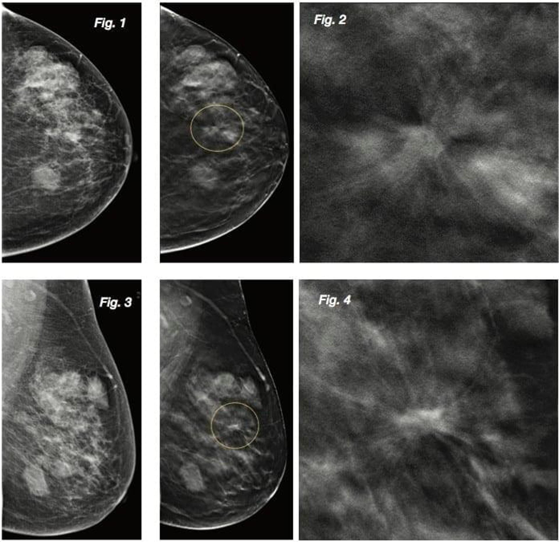 右圖:乳房X光造影報告。(圖片:venushealthcentre)