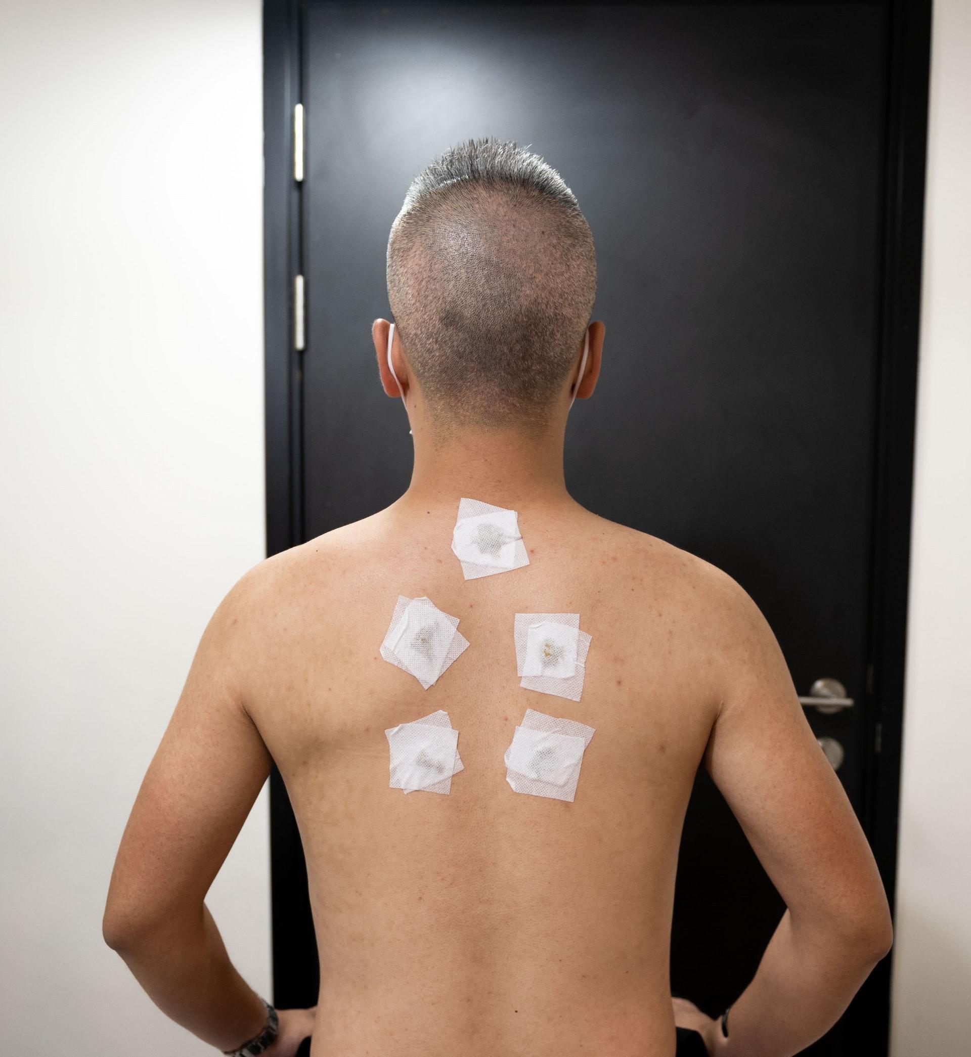 天灸療法是透過以溫熱的中藥製成的藥貼,敷在特定的穴位上,經穴位吸收藥性,從而扶助陽氣,達到陰陽平衡、祛寒治病以及增強抵抗力的目的。