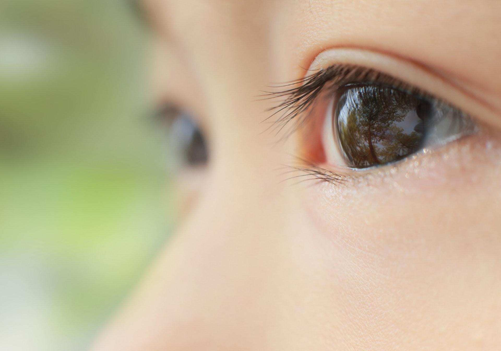 角蛋白睫毛有機會對眼睛造成化學性受傷。 (圖片:canva.com )