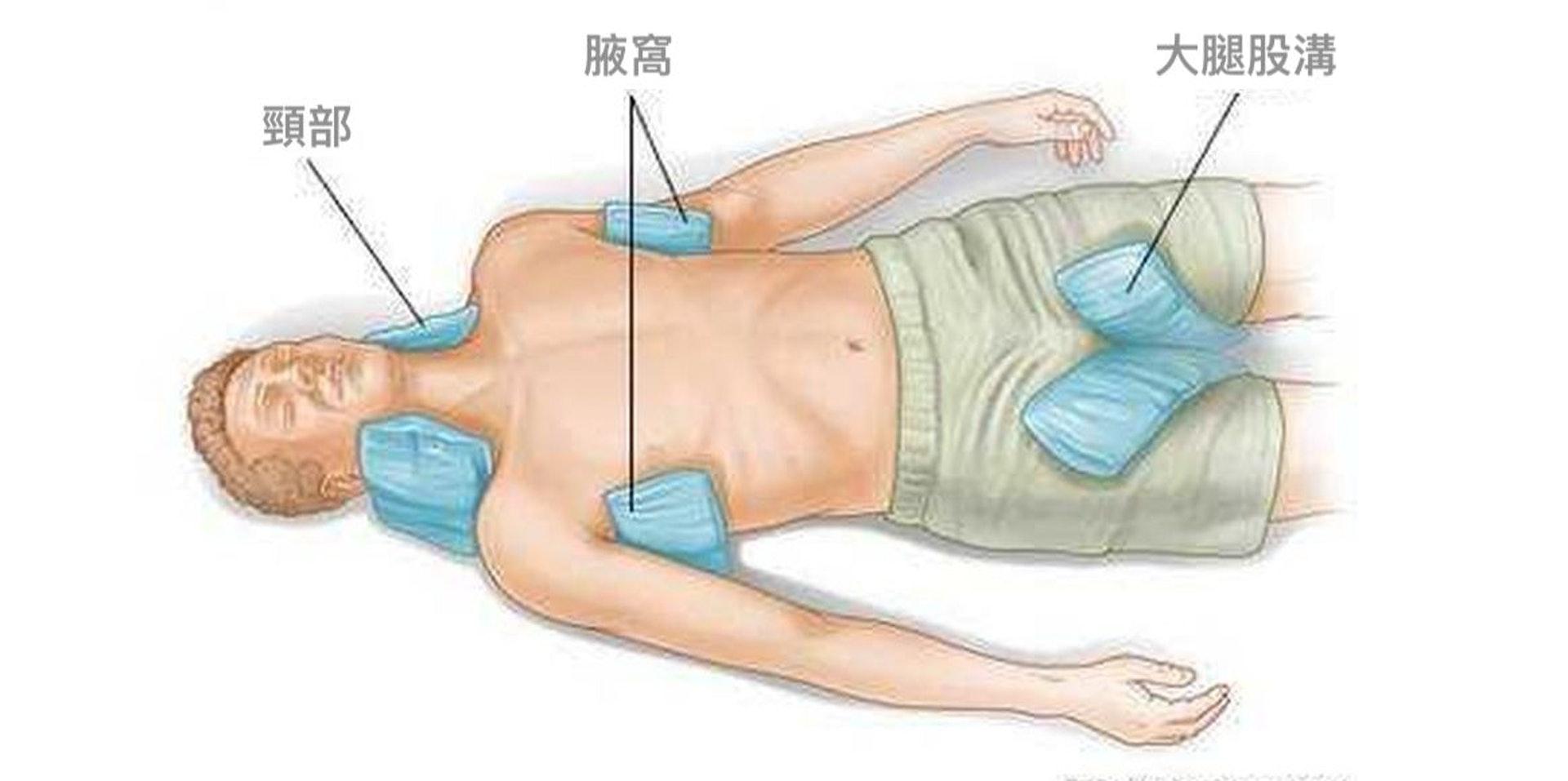 為中暑者急救,可用冰袋或冷水沾濕的毛巾,敷在頸部、腋窩或大腿股溝處等大動脈血管部位,幫助散熱。(圖片:chineseineurope)