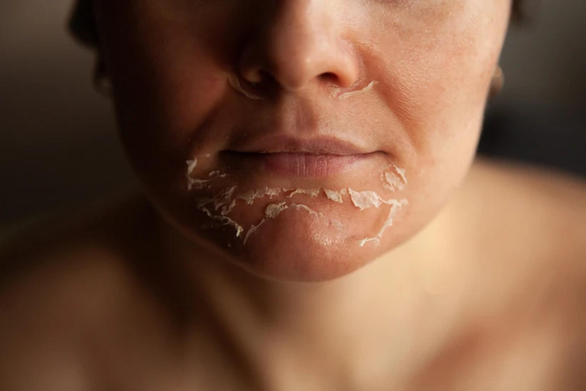 有八成以上初次接觸果酸的用者家,可能會出現粉刺、暗瘡增加或脫皮等情況。(圖片:Viviantskincare)