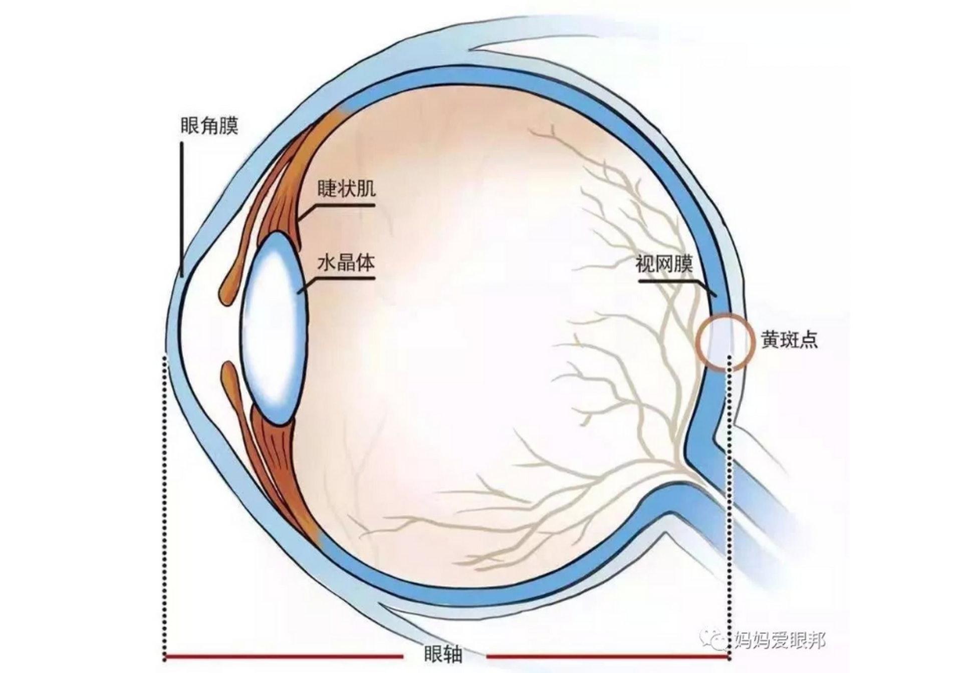 兒童近視的原因之一是眼軸過長或角膜弧度太彎,另一原因是睫狀肌過度使用無法放鬆。(圖片:知乎)