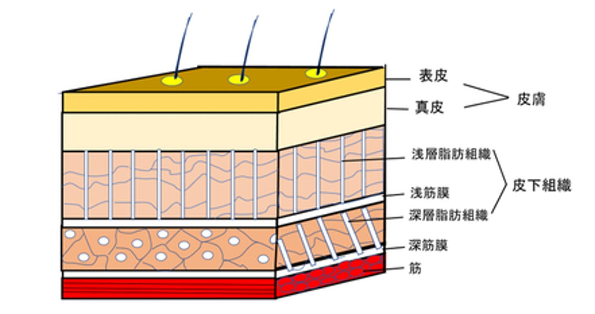 貼布的黏性及彈性可增加皮膚與肌肉間的空間,影響皮下筋膜組織的流向。(圖片:manakake)