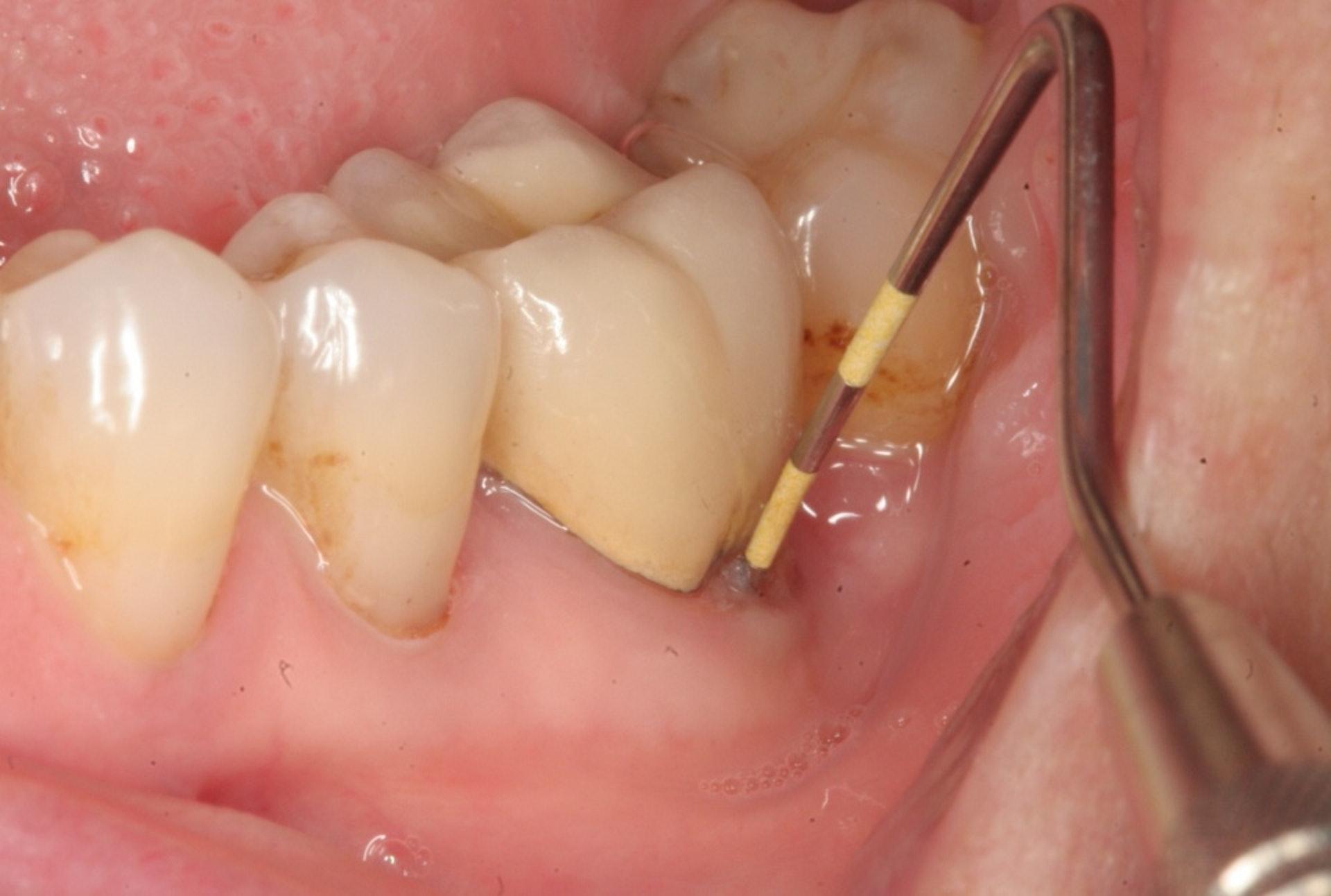 嚴重的牙周病患者,或需接受牙周手術,利用牙科儀器清刮牙根表面。(圖片:read01)