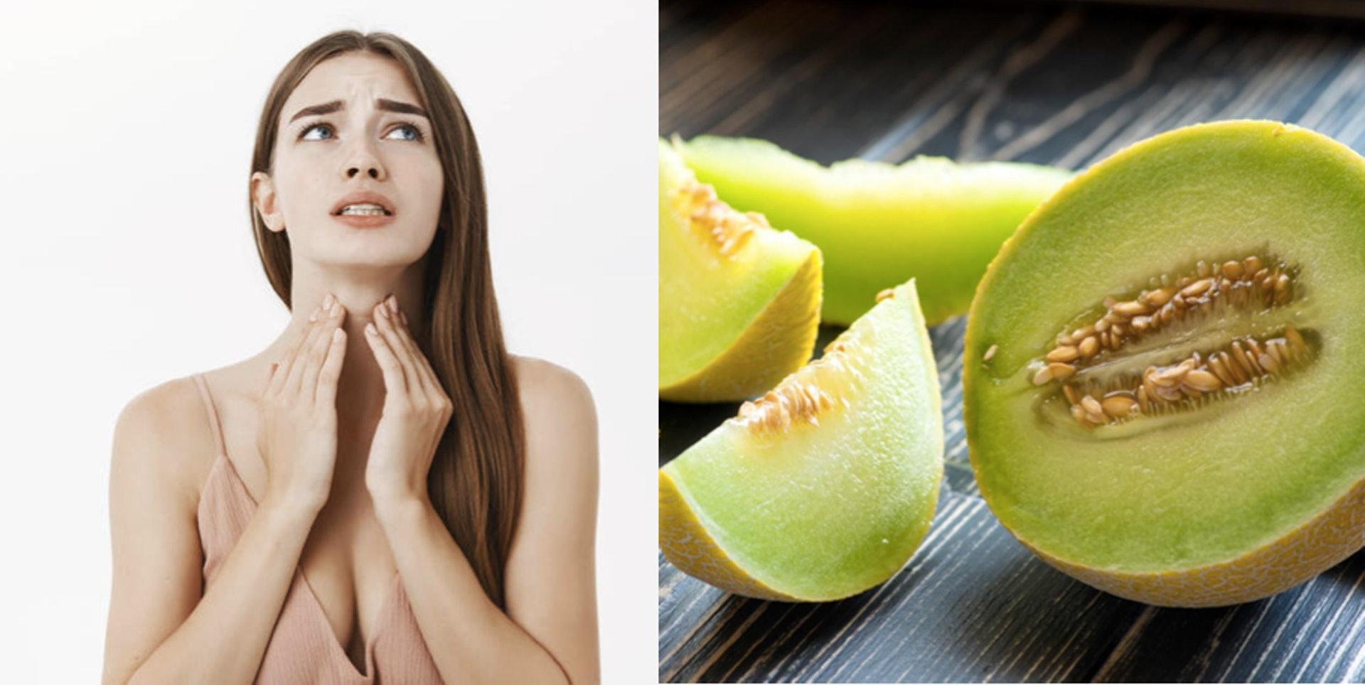 吃了新鮮切好的蜜瓜後喉嚨痕癢,並非輕微食物中毒,那麼原因是甚麼?(圖片:health.ltn、hk01)