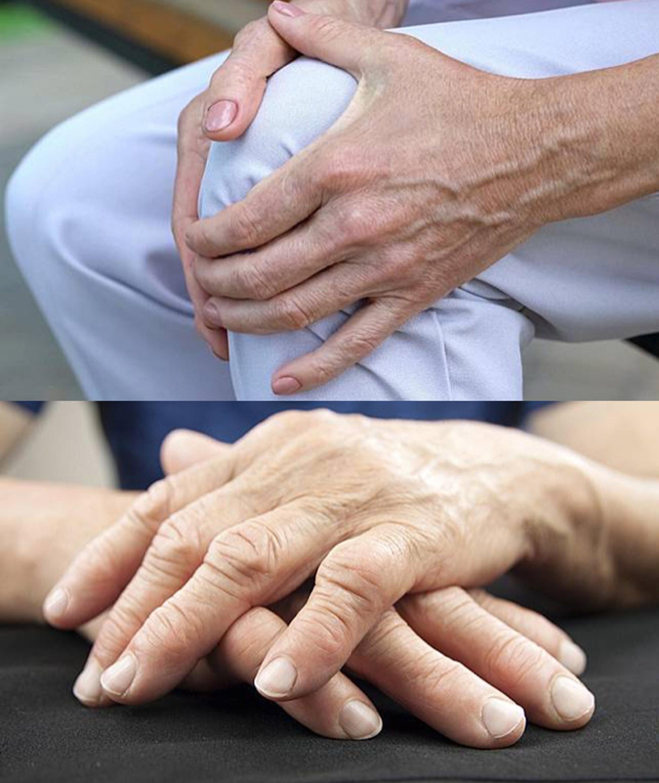 關節受損相關疾病的統稱,有約150種類型,主要是關節的軟骨退化或締結組織發炎,導致關節疼痛、僵硬及活動受阻等。(圖片:today.line)