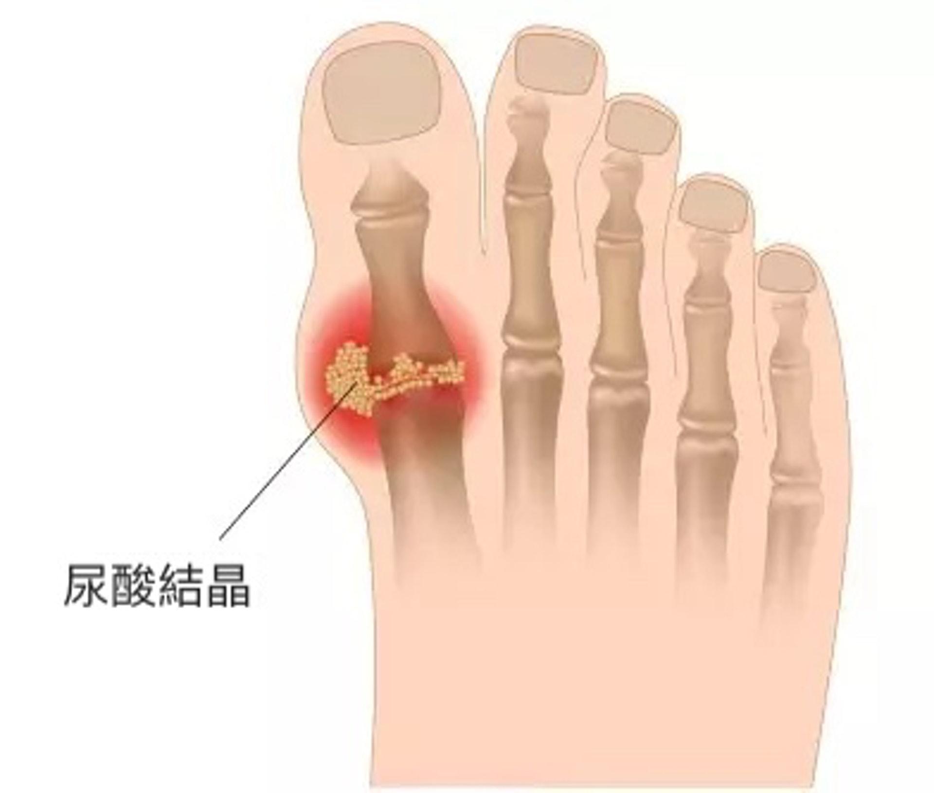 「痛風」全名是「痛風性關節炎」,因過量的尿酸會在體內累積,形成結晶體,沉積在關節處,引致關節發炎和劇痛。(圖片:ifun01)