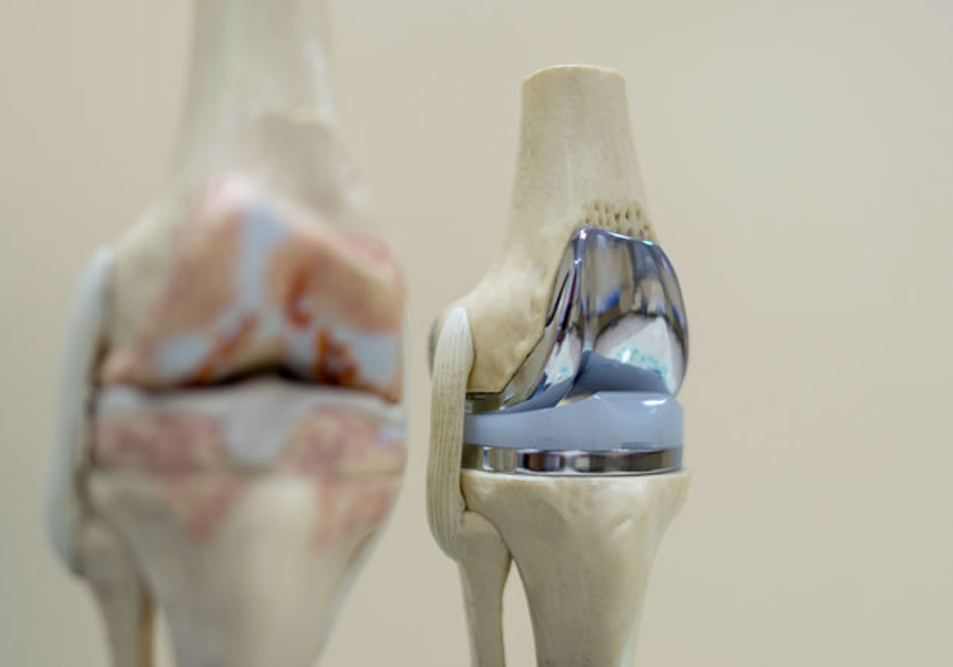 關節置換術以人工關節取代受損、磨蝕或已病變的關節,成效顯著,但術後需要較長時間康復、護理及適應新關節。(圖片:health.gvm)