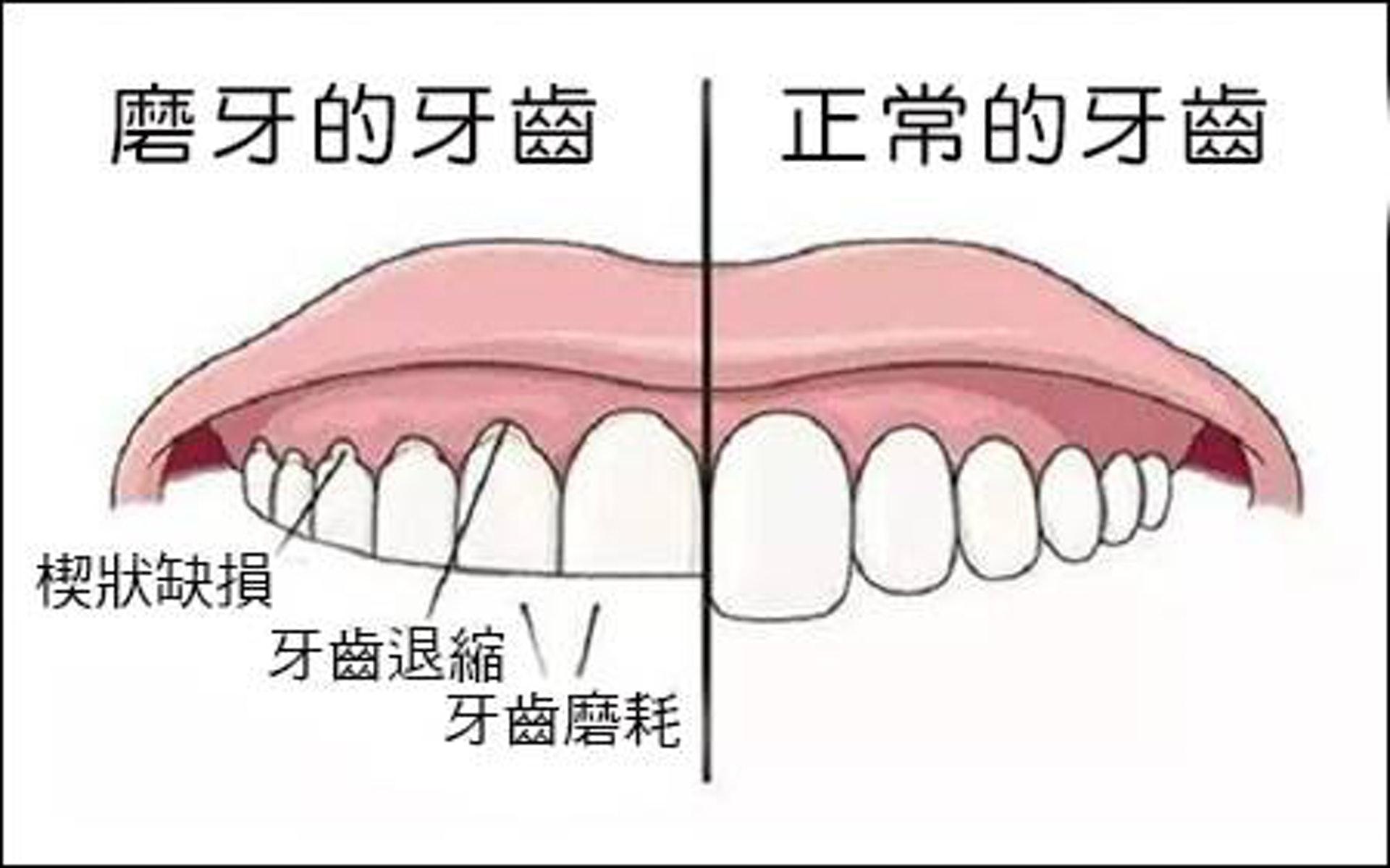 磨牙最大壞處是損蝕琺瑯質,令象牙質外露;而象牙質較柔軟,保護力不及琺瑯質,令牙齒磨蝕得更快。(圖片:today.line.me)