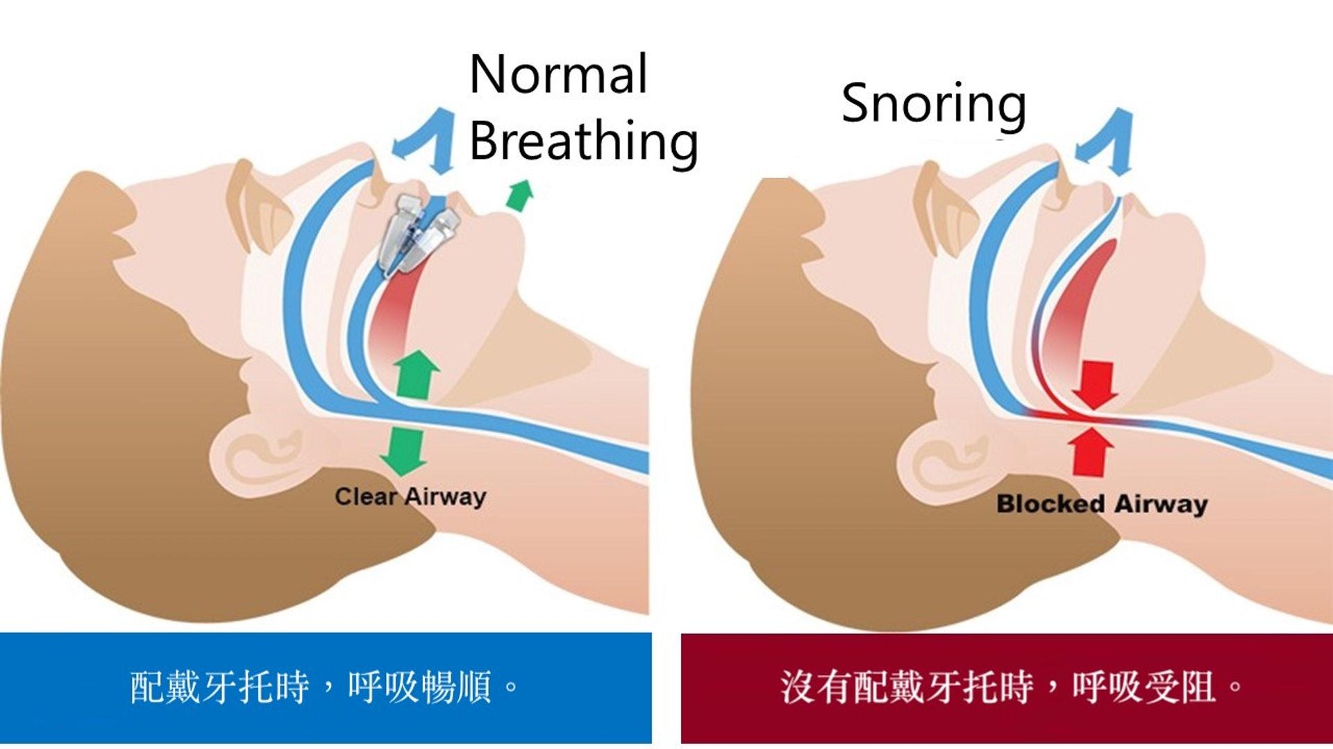 牙托簡單有效,原理是將下顎輕微向外推出,擴闊上呼吸道,令呼吸暢順,從而改善鼻鼾問題。(圖片:mynaturlig)