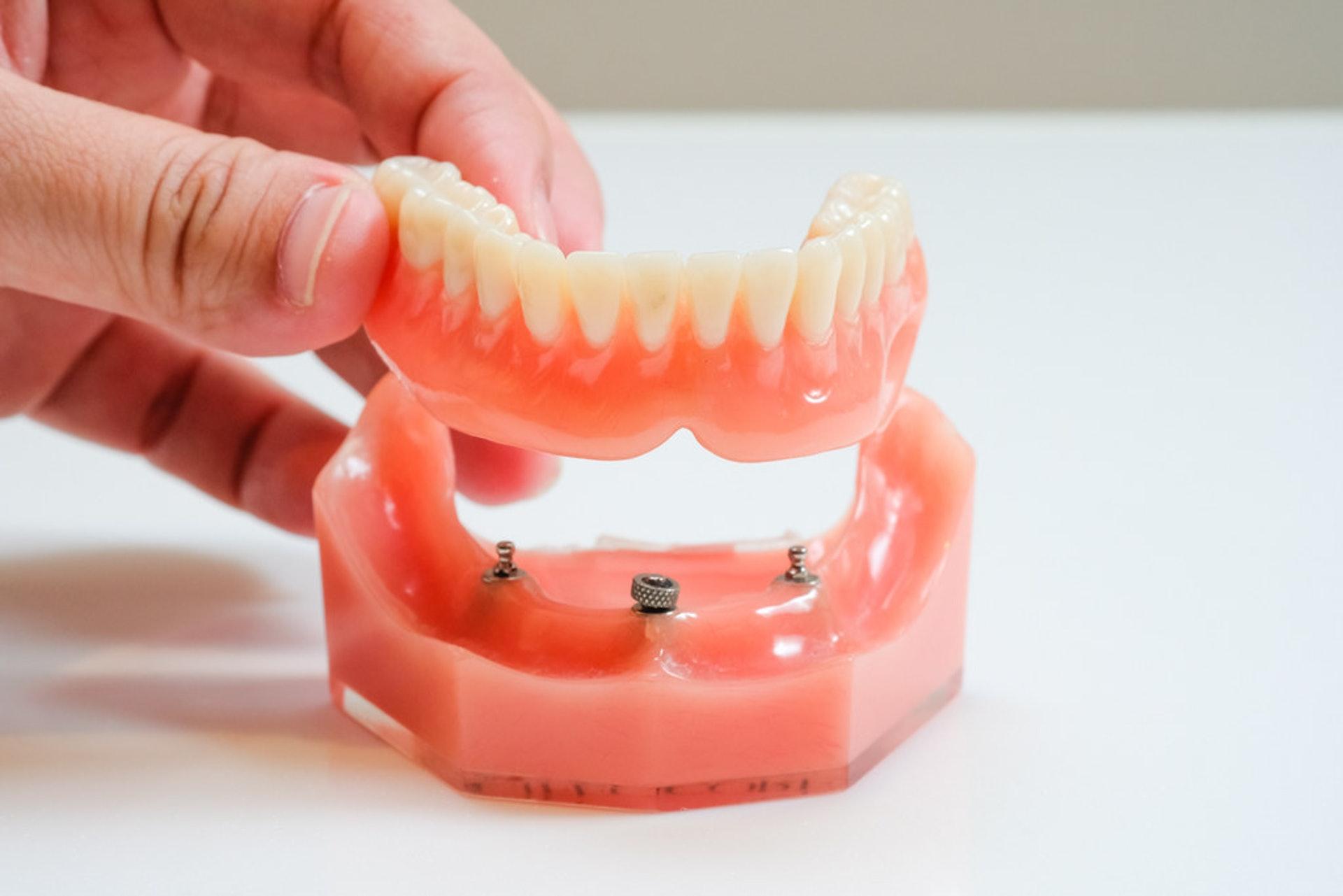 新式種牙技術會大大提升舒適度。主要是將螺絲植入牙槽骨,突出小部分用以固定假牙。上排牙齒會植入4至6粒螺絲,下排牙齒2至4粒。(圖片:flickr)
