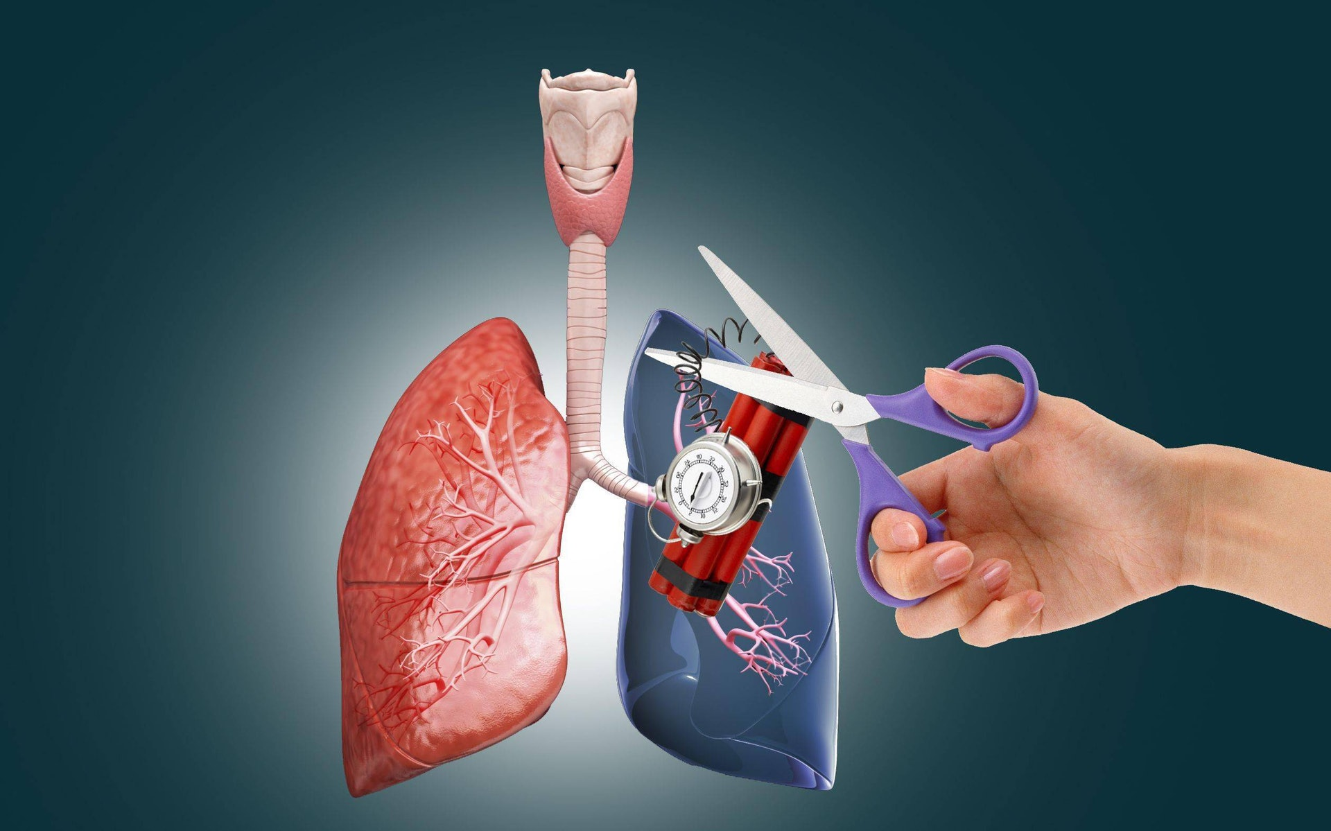 肺栓塞可讓血液的含氧量下降,器官會因缺氧而失去功能、衰竭,嚴重甚至會令人猝死。(圖片:Sohu)