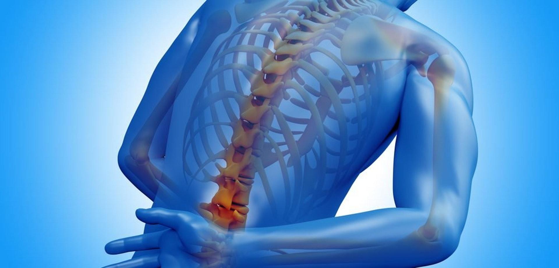 臨床發現不少強直性脊椎炎患者帶有HLA-B27基因,再加上後天環境因素,令免疫系統失調,引發此症。(圖片:ankylosingspondylitisnews)
