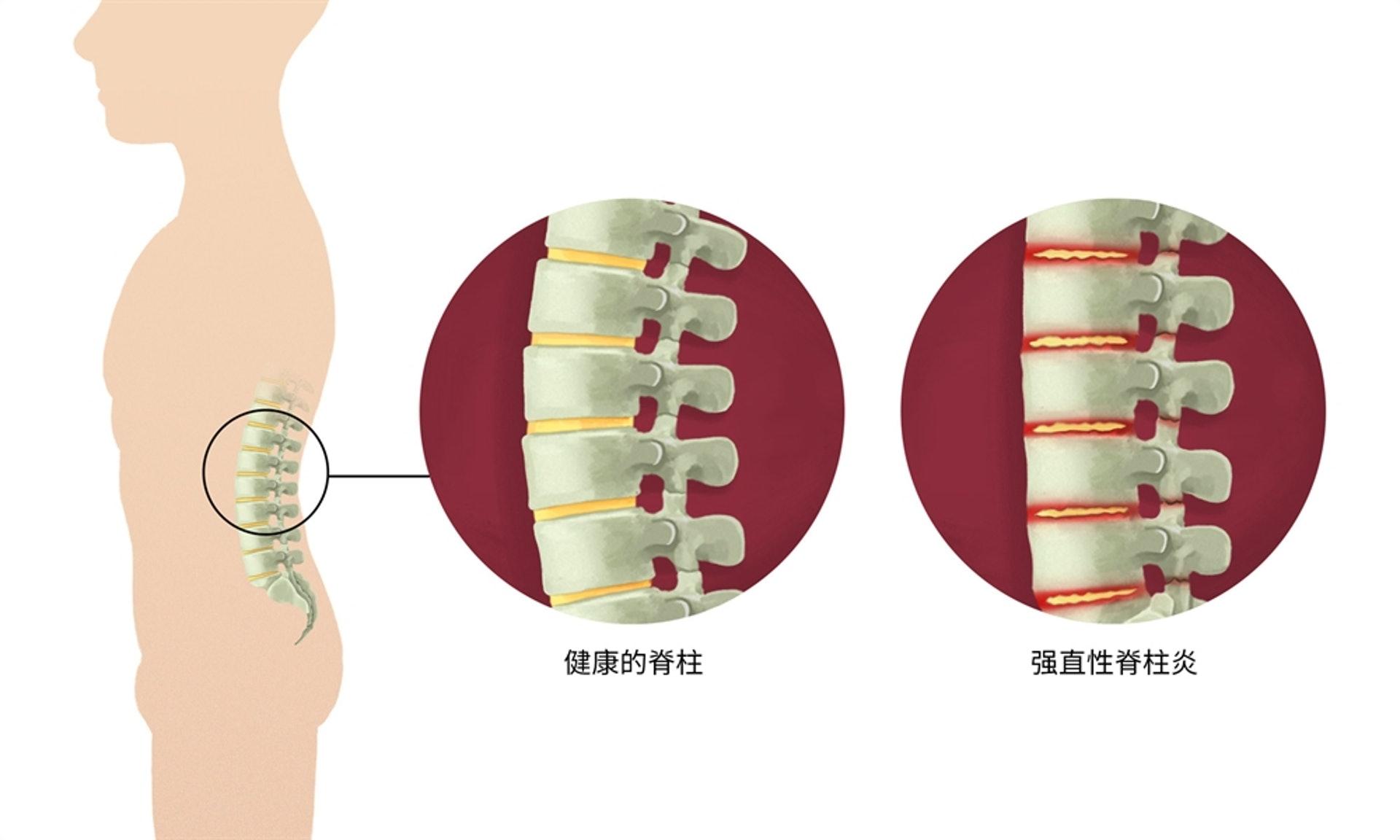 強直性脊椎炎持續會使骨骼增生及融合,導致關節僵硬,移動幅度嚴重受限,患者會失去靈活度。(圖片:doctorsaustralia)