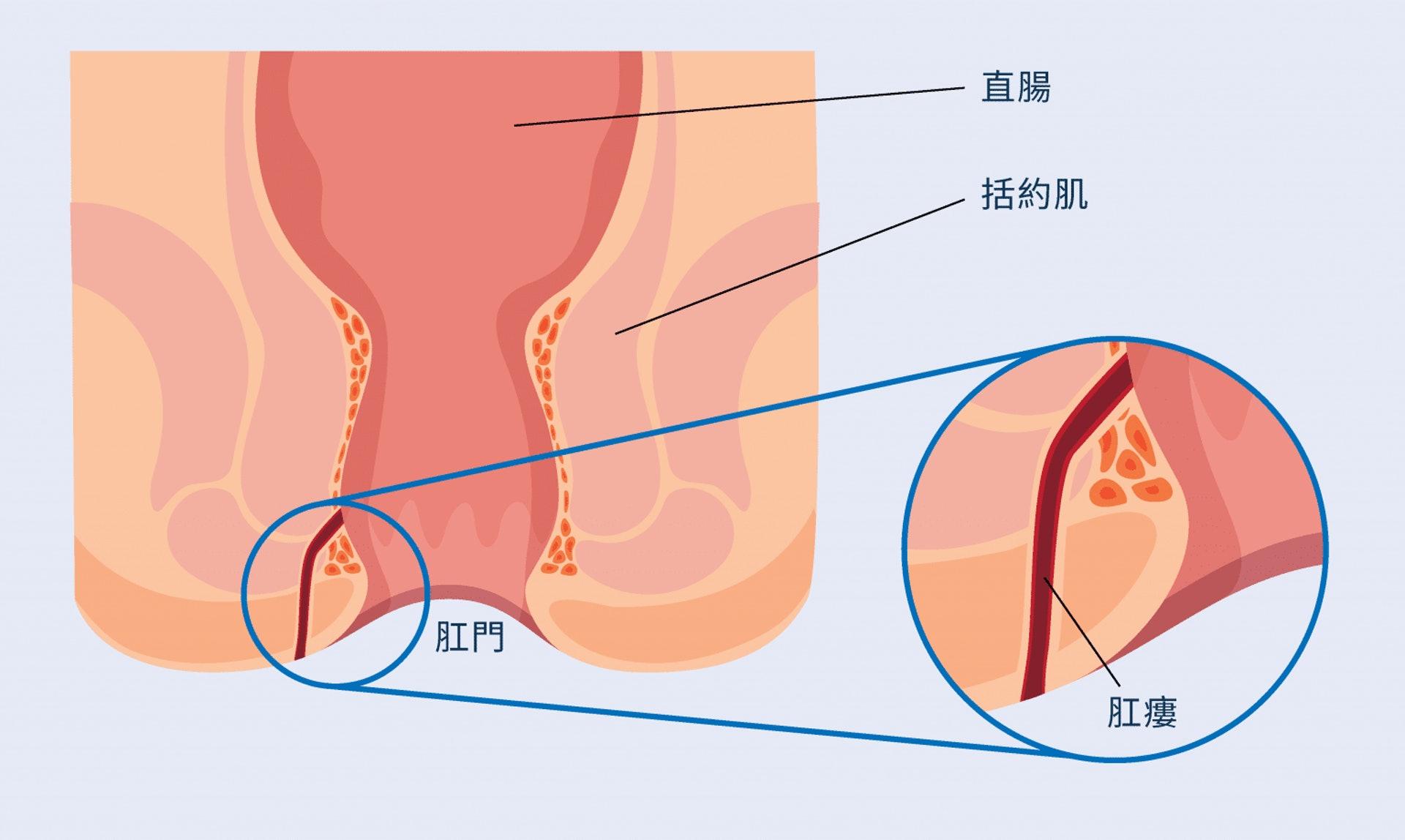 肛門瘻管在肛門直腸內和肛門外圍的皮膚形成。開口和肛門直腸相通,令開口會不斷受糞便和細菌污染,造成感染,最終發炎。(圖片:ICON專科中心)