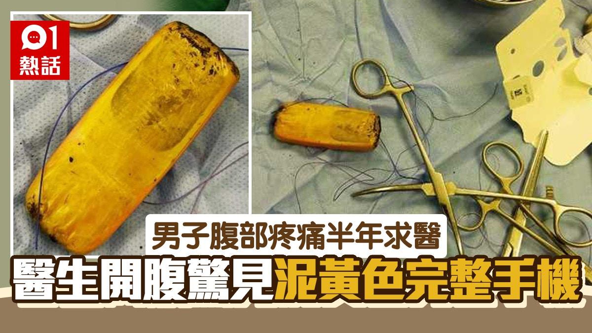 男子誤吞手機 卡胃半年劇痛求醫 醫生開腹取出「泥色完整機身」