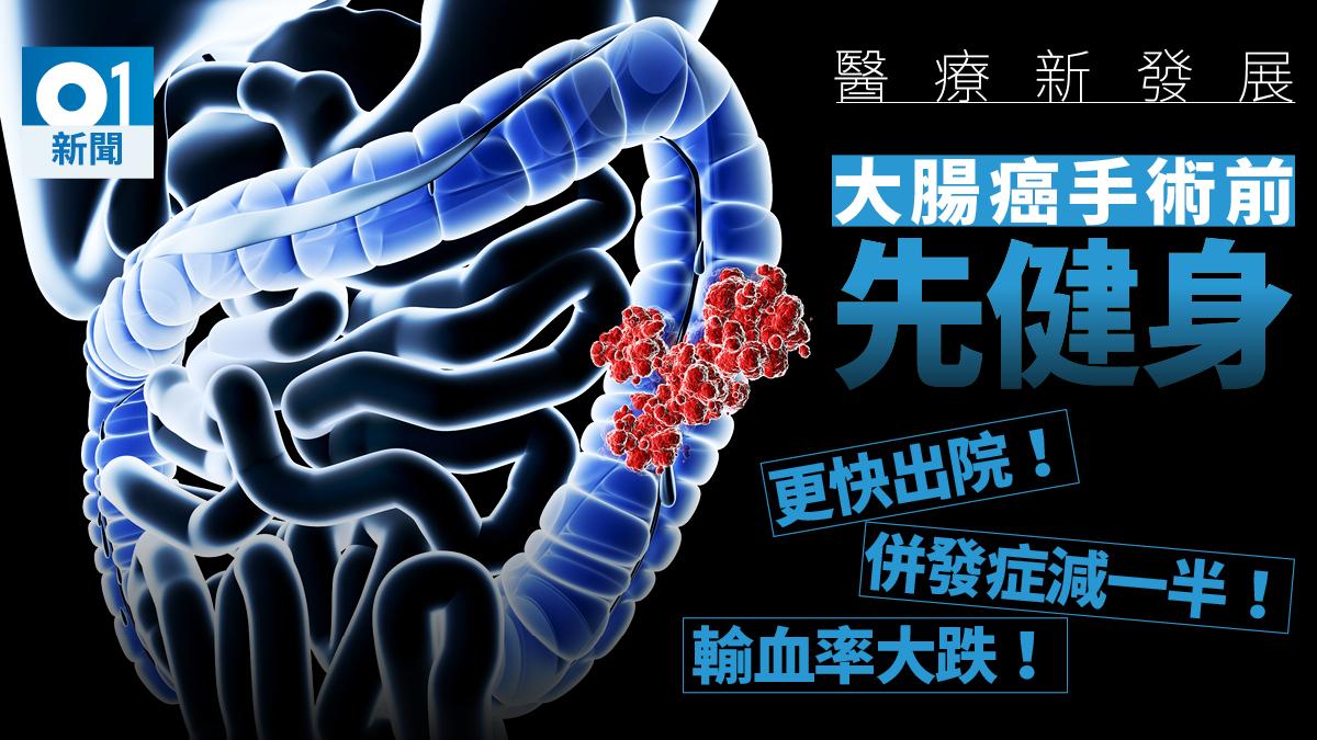 將軍澳醫院教大腸癌病人手術前鍛鍊體能 加快手術後康復