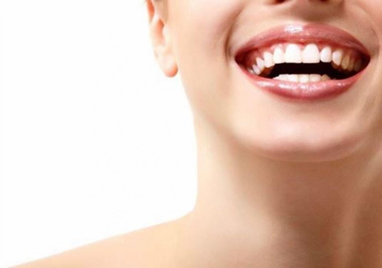 除了到牙醫診所接受專業美白牙齒服務,在家中一樣可以輕鬆去漬。(blackdiamond_toothpolish@Instagram)